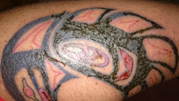 Es Normal Que La Costra De Mi Tatuaje Este Así Zonatattoos