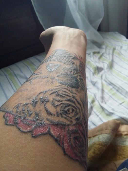 picazón tatuaje