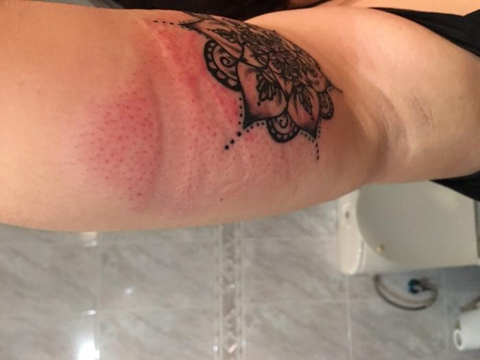 Se Me Ha Infectado El Tatuaje Sfb