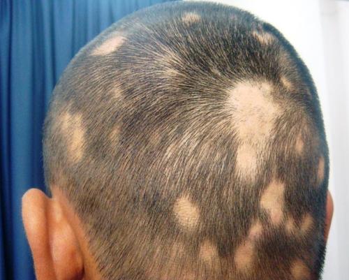 Tatuar Cabeza Con Calvas Zonatattoos